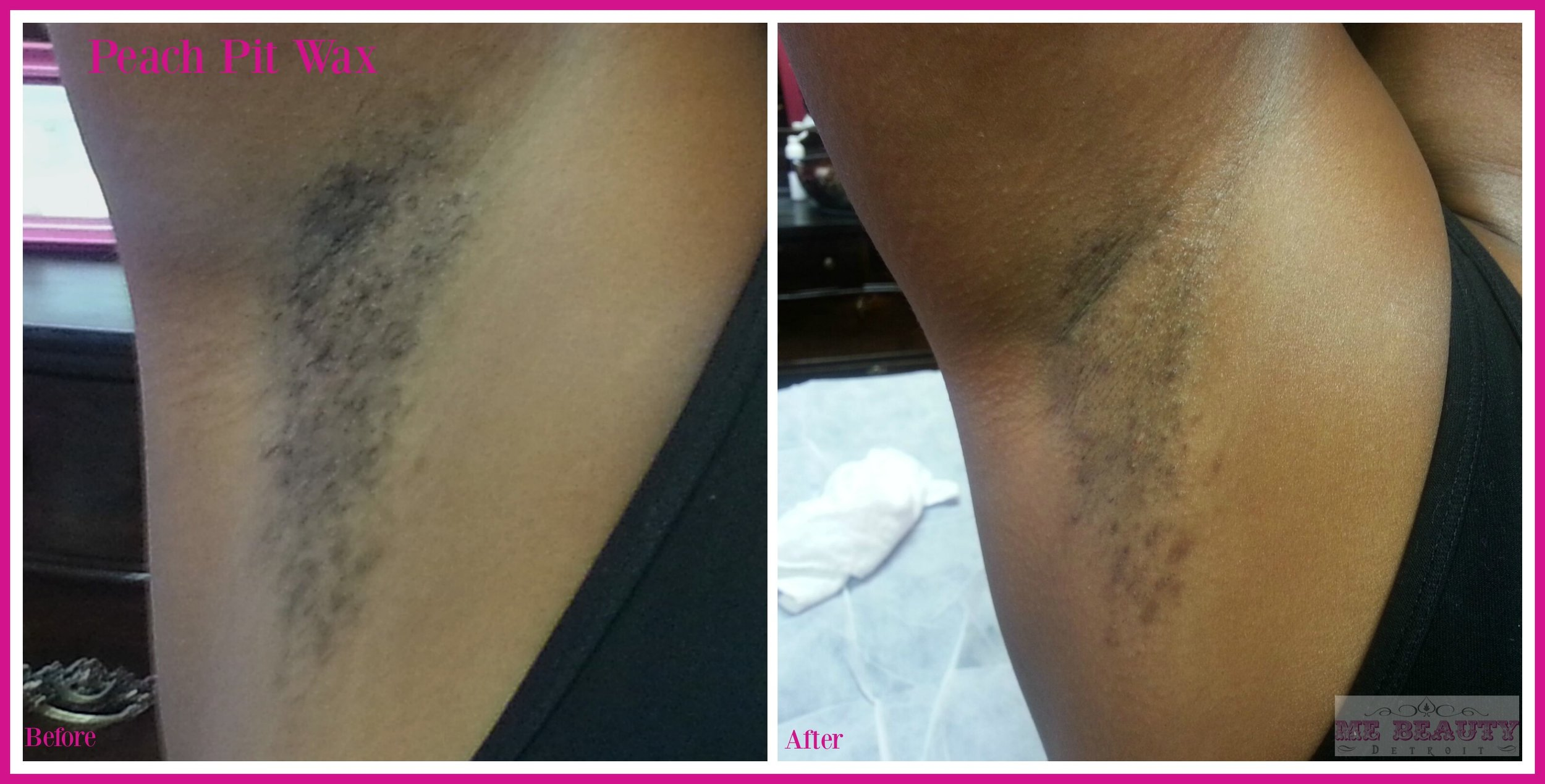 African American Female 20s has ingrown hairs, and hyper-pigmentation.  I recommended a monthly wax session.  For her to use an ingrown serum and Phaze13 Pigment bar. Photo credit ME Beauty LLC circa Nov 2012