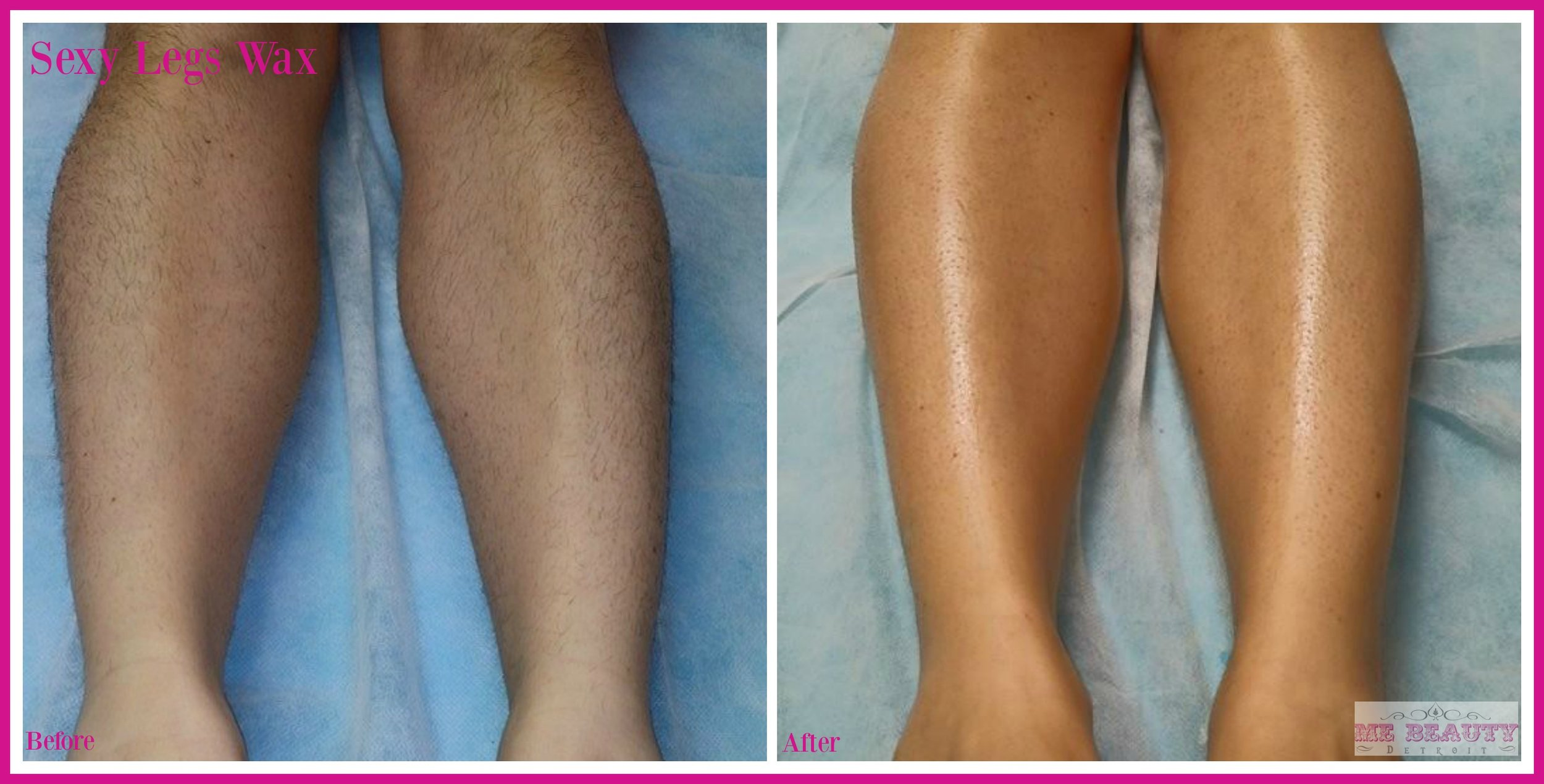 Caucasian American Female 30s waxes semi-monthly.  She shaves in between waxing and has not gotten the results of clients that don't shave in between waxes.  Photo Credit ME Beauty LLC August 2014