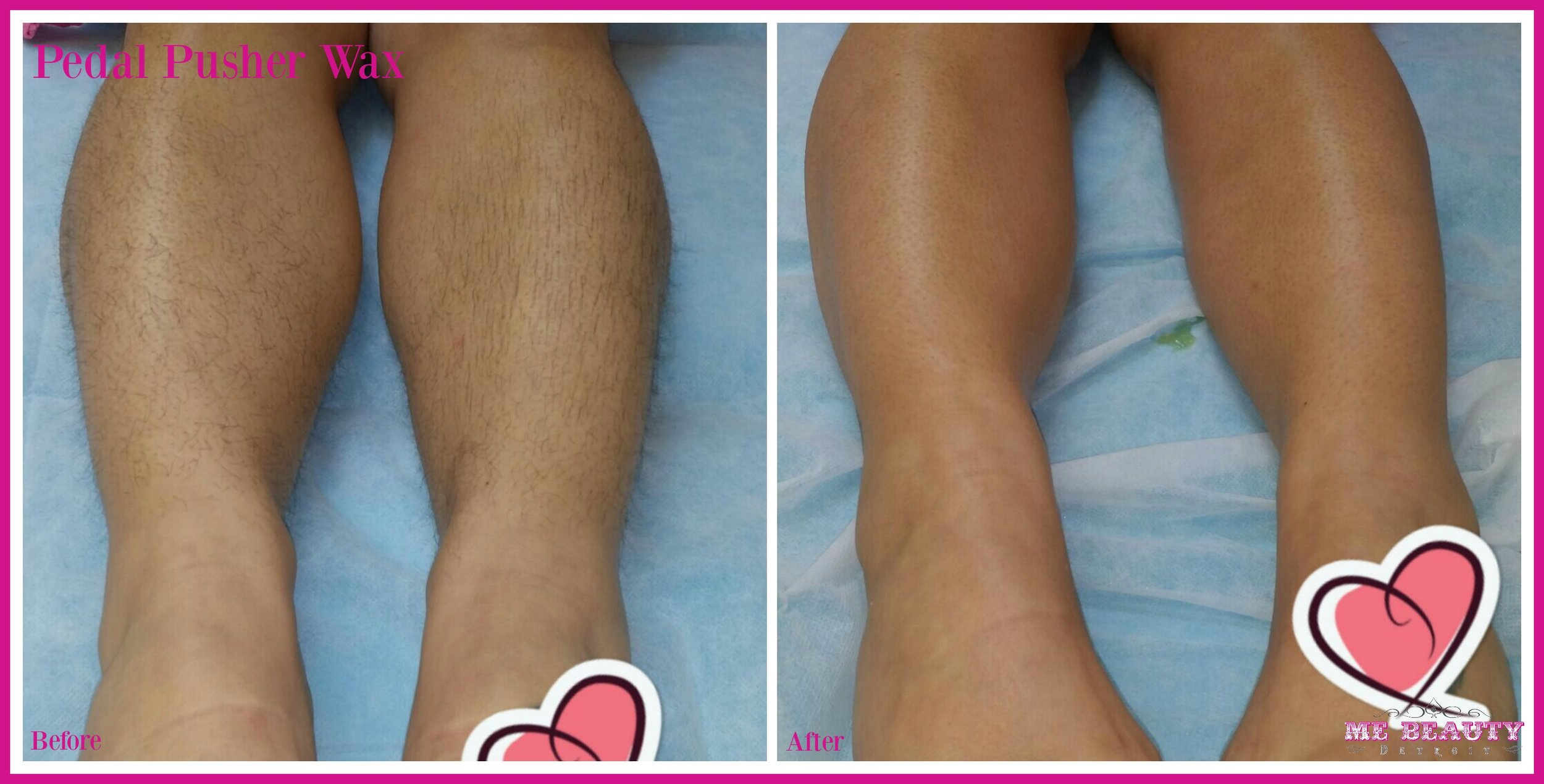 Italian American Female 20s had laser done for two years for to reduce the amount of hair growth.  Now waxes monthly for hair removal   Photo Credit  ME Beauty LLC circa March 2015