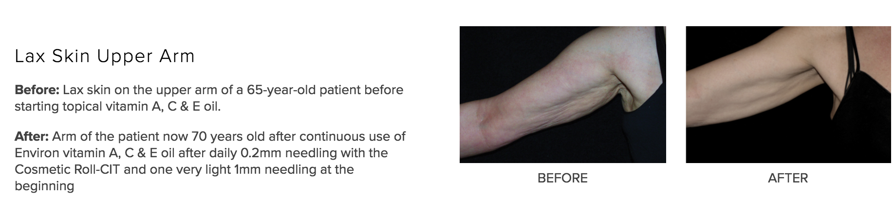 VITAMIN A:NEEDLING ARM.png