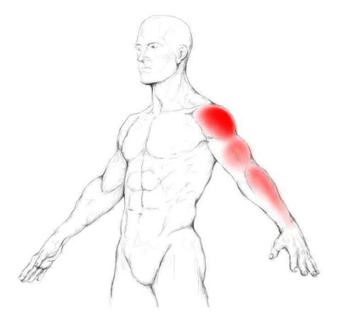 supraspinatus-trigger-point-pain-480x439.jpg