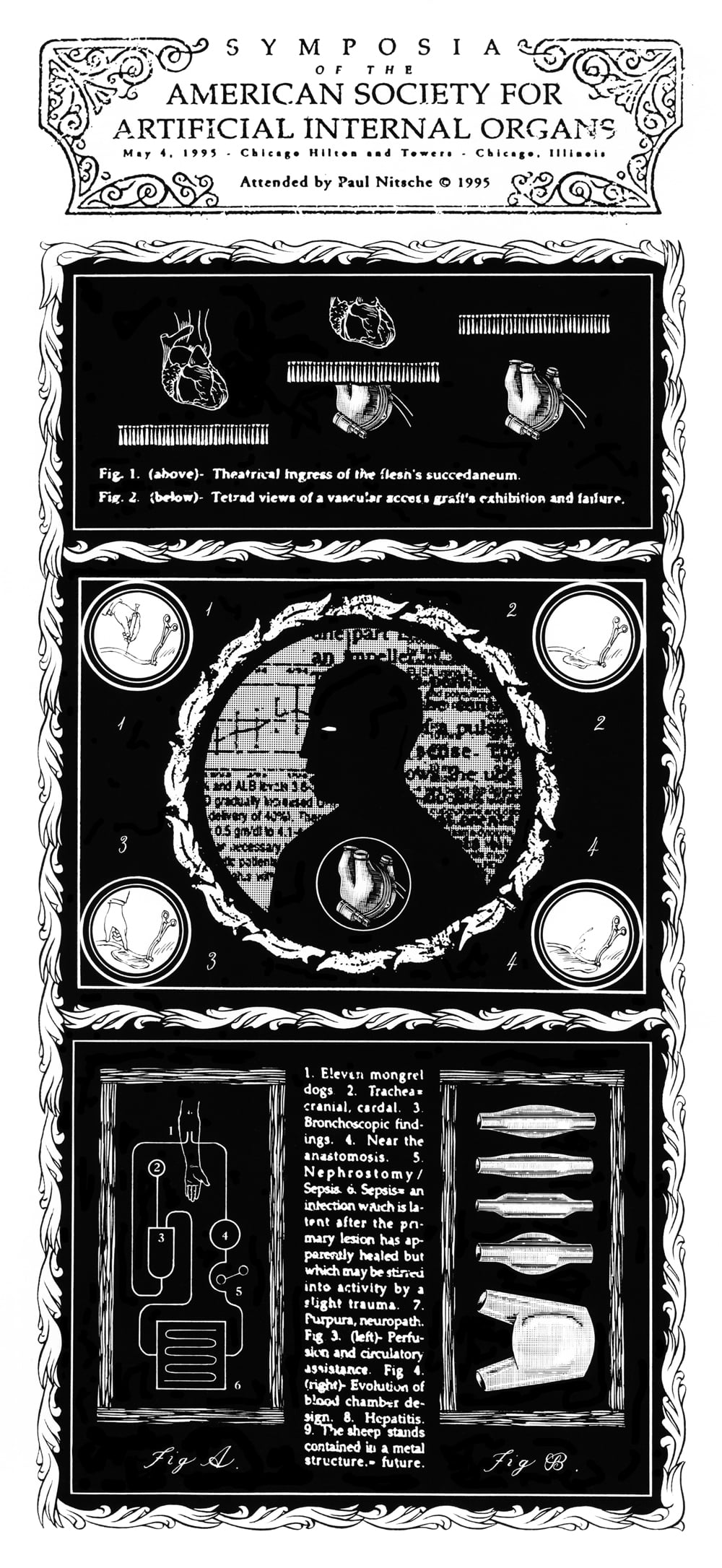 Symposia of the American Society for Artificial Internal Organs . 1 Page. 1995. Pen and ink, Scratch board. Published by  New City  Weekly Newspaper.