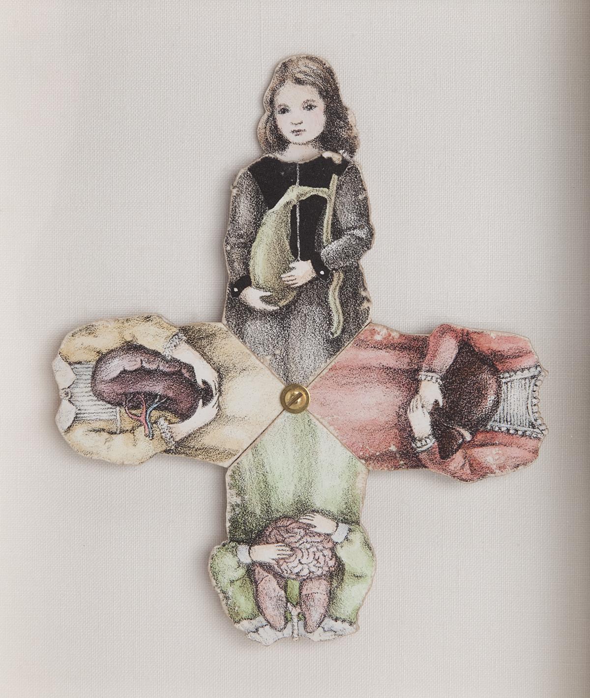 The Four Humors, Gallbladder Dress Detail.