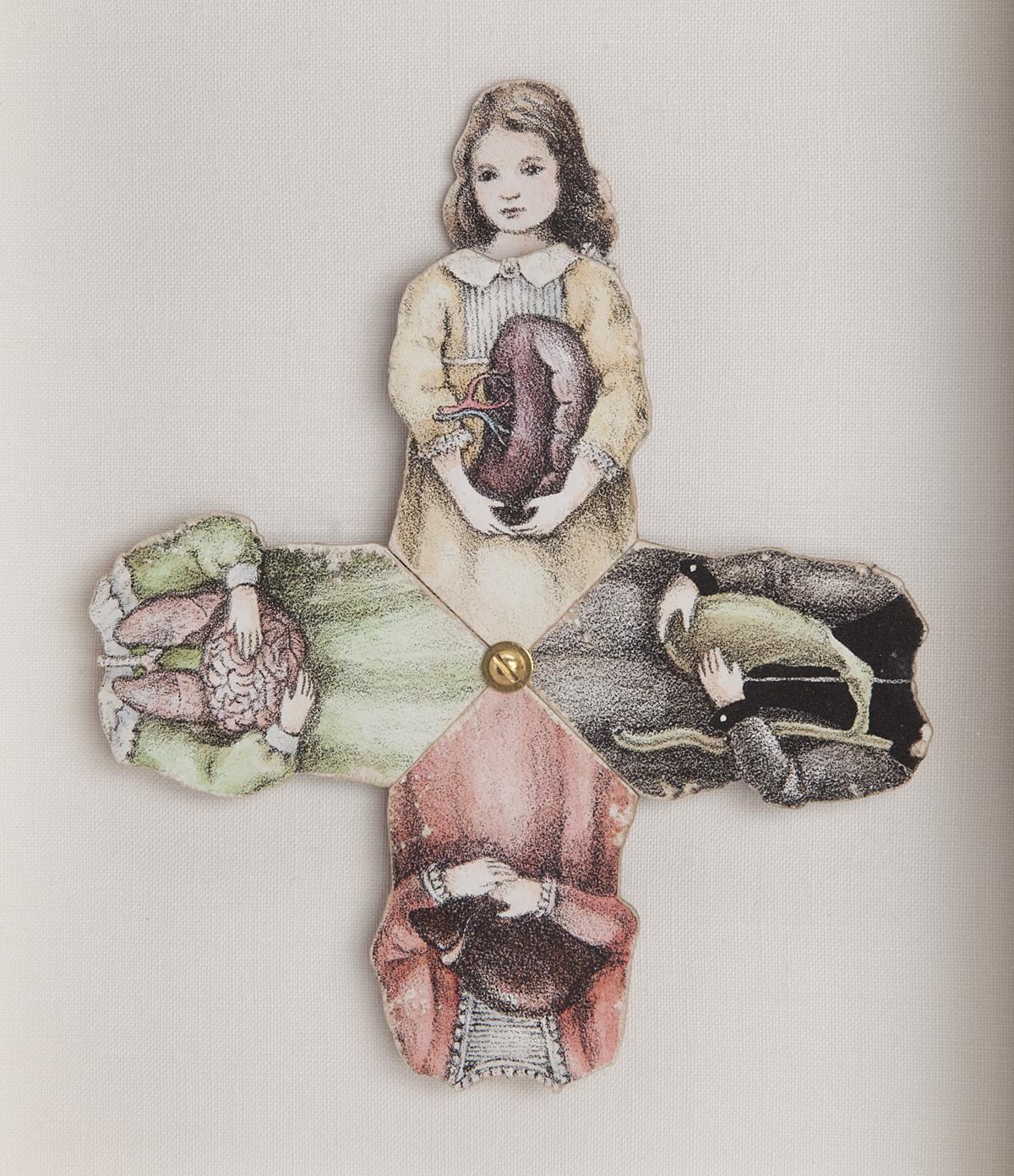 The Four Humors, Detail of Spleen Dress.