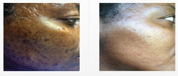 acne-scars-woodland-hills.png