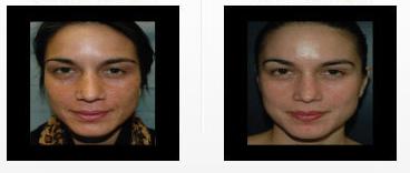 best-skin-care-doctor-san-fernando-valley.png
