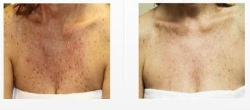 chest-skin-treatment-woodland-hills.png