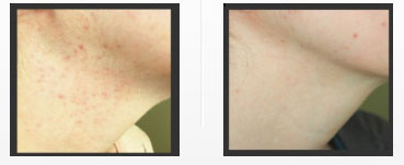 acne-scars-treatment.png