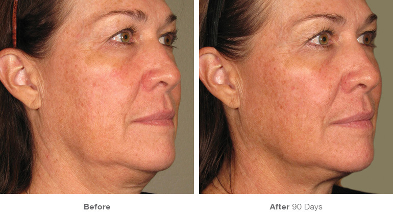 before_after_ultherapy_results_full-face20.jpg