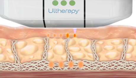 Animation of How Ultherapy Stimulates Collagen Production at Different Layers - Skin Tightening - WEB.jpg