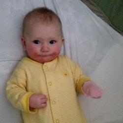 BABY ECZEMA | BEFORE