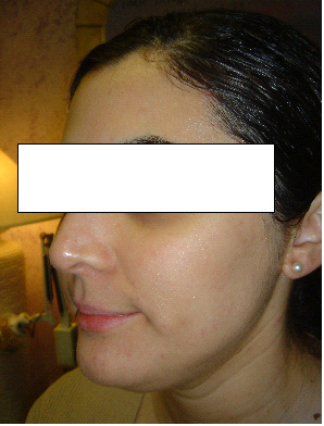 ACNE & SKIN BLEMISH | AFTER