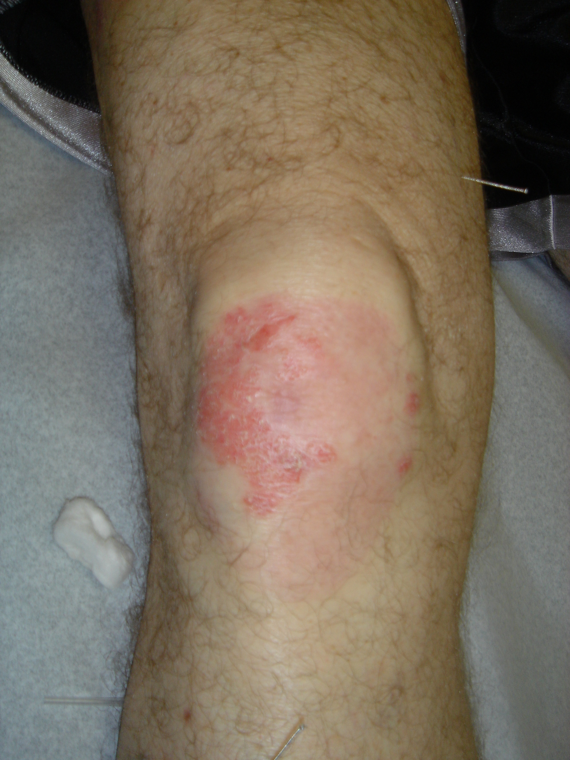 PSORIASIS RIGHT KNEE | MID-WAY THROUGH TREATMENTS