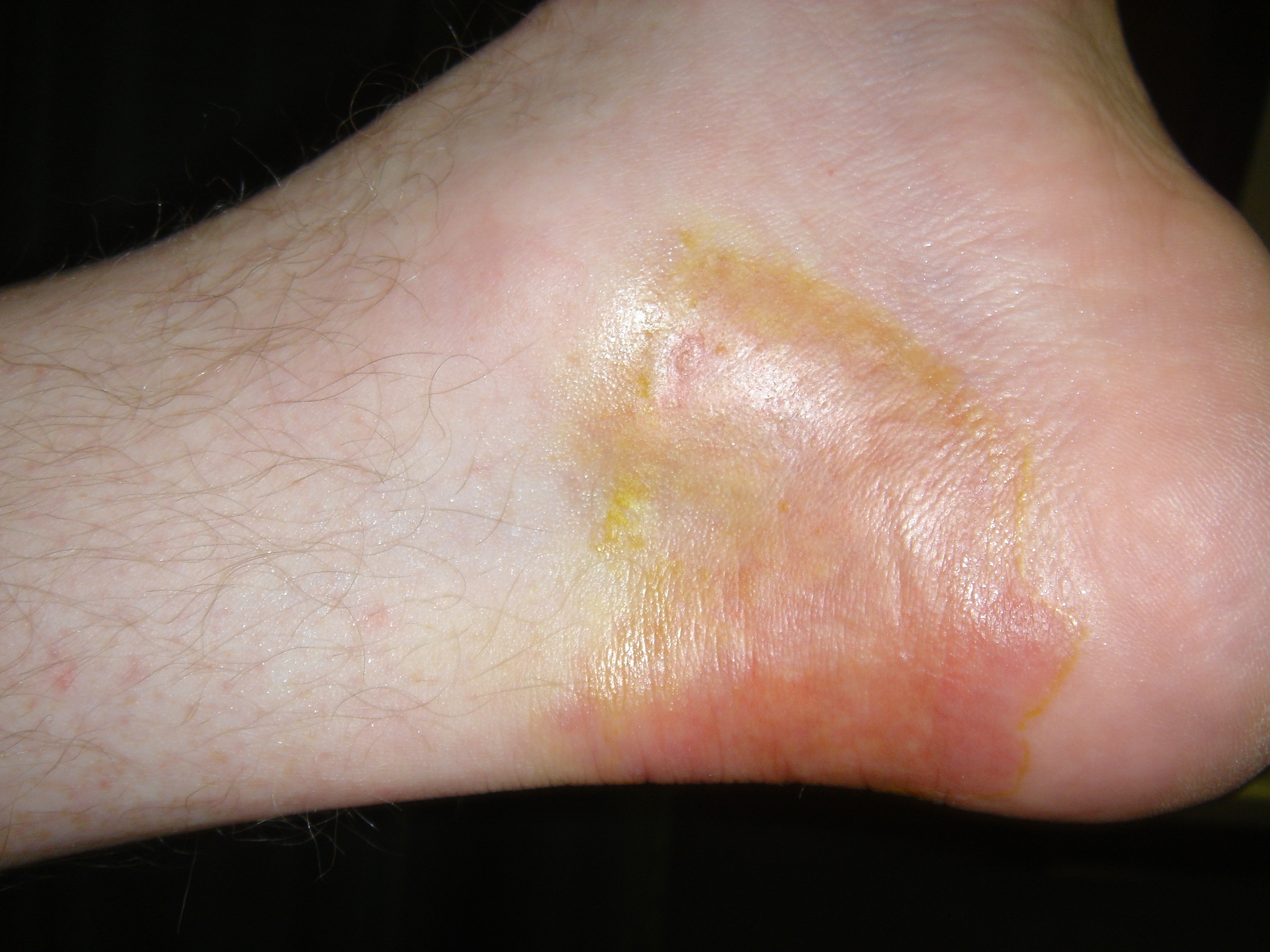2ND AND 3RD DEGREE BURNS   AFTER