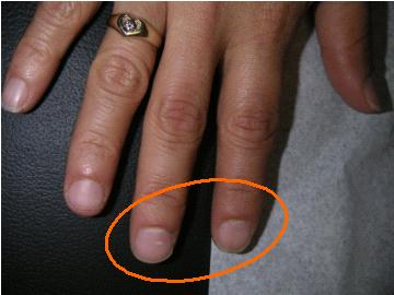 NAIL DISCOLORATION   AFTER