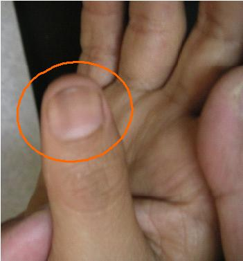 NAIL DISCOLORATION DURING CHEMOTHERAPY   BEFORE