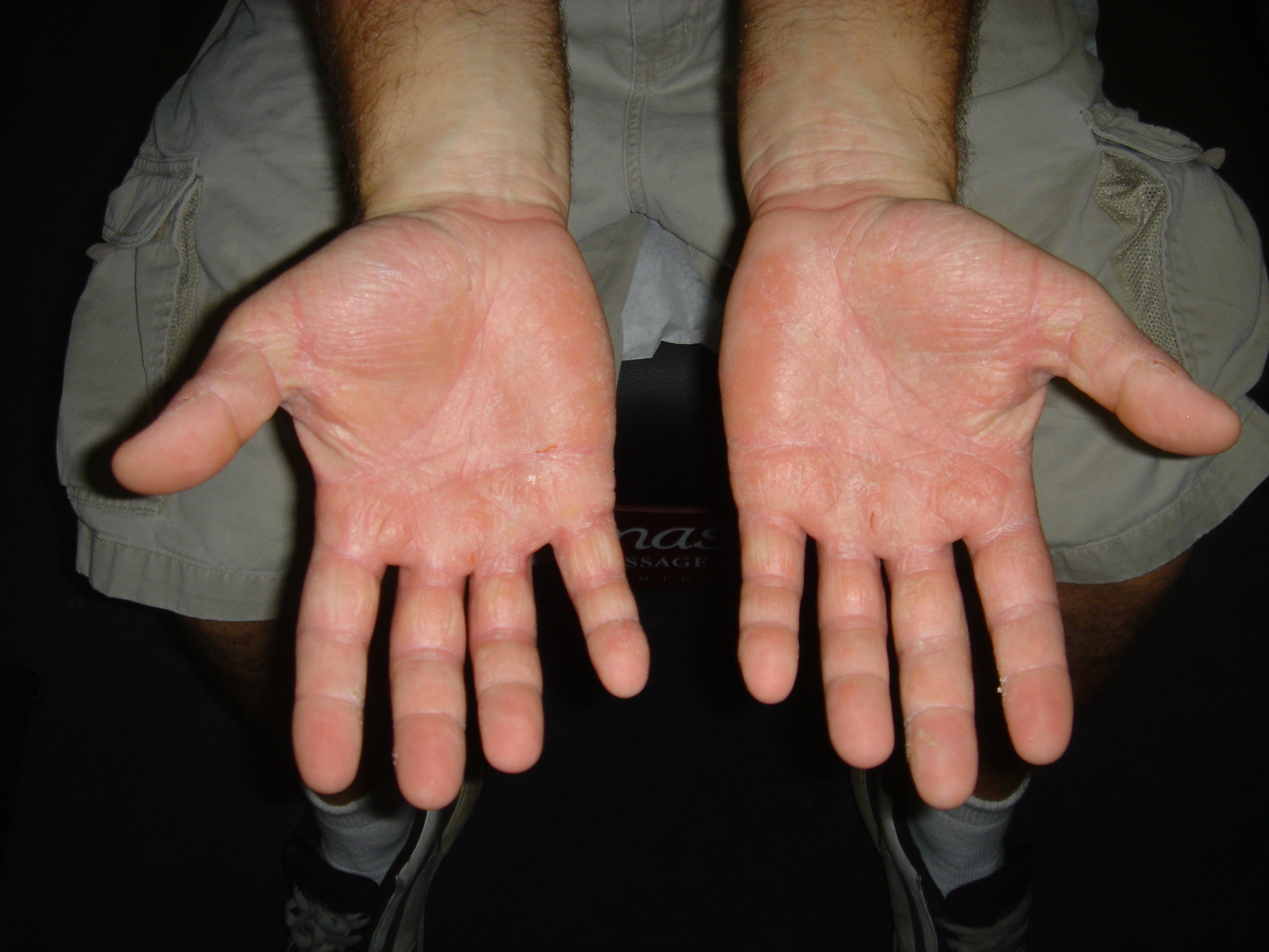 DERMATITIS SKIN CONDITION AND BLISTERS   BEFORE
