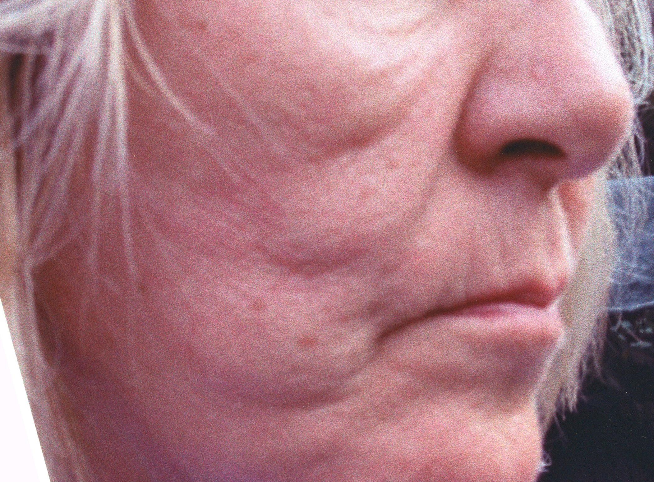 ACUPUNCTURE FACE LIFT - BEFORE