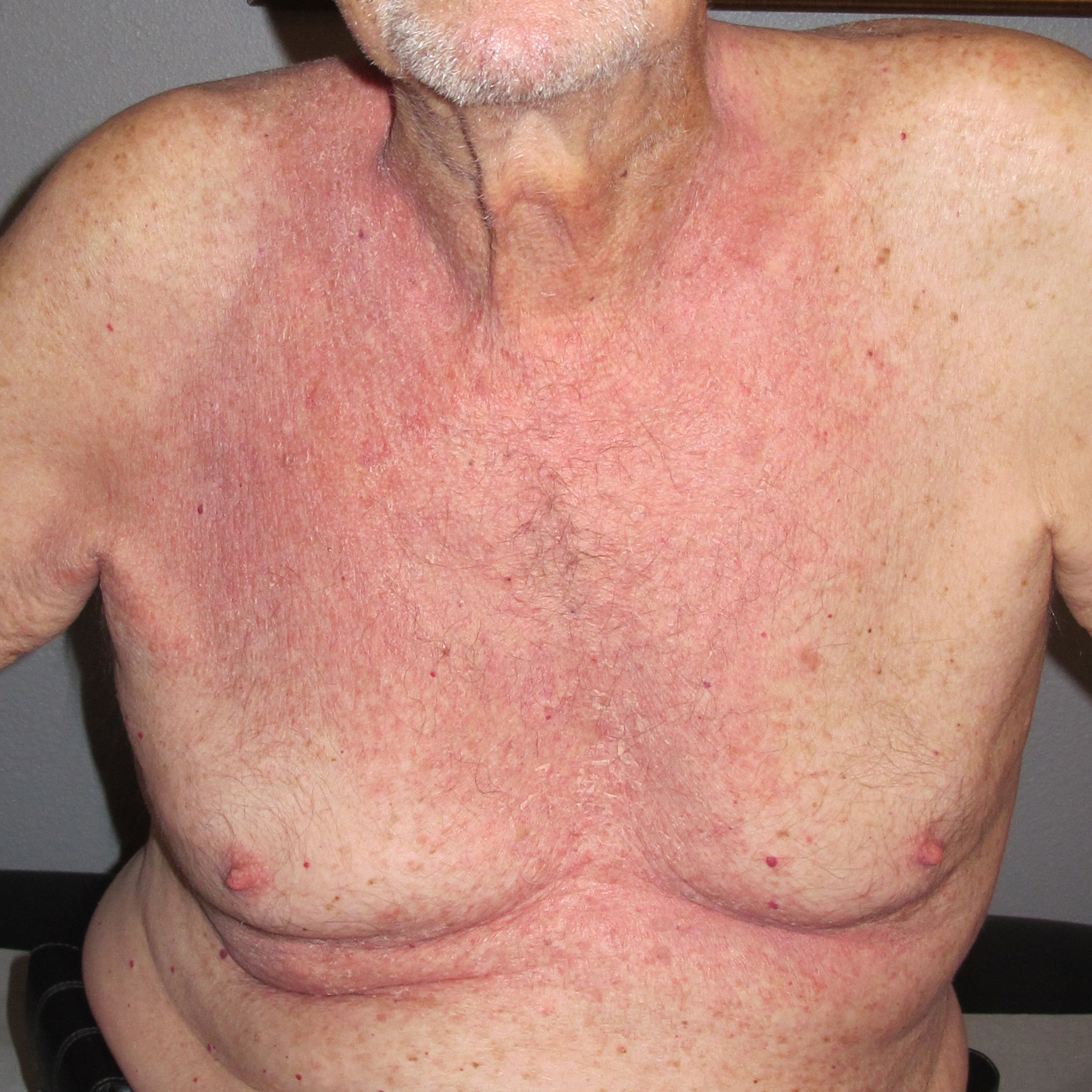 HIVES AND DERMATITIS   BEFORE