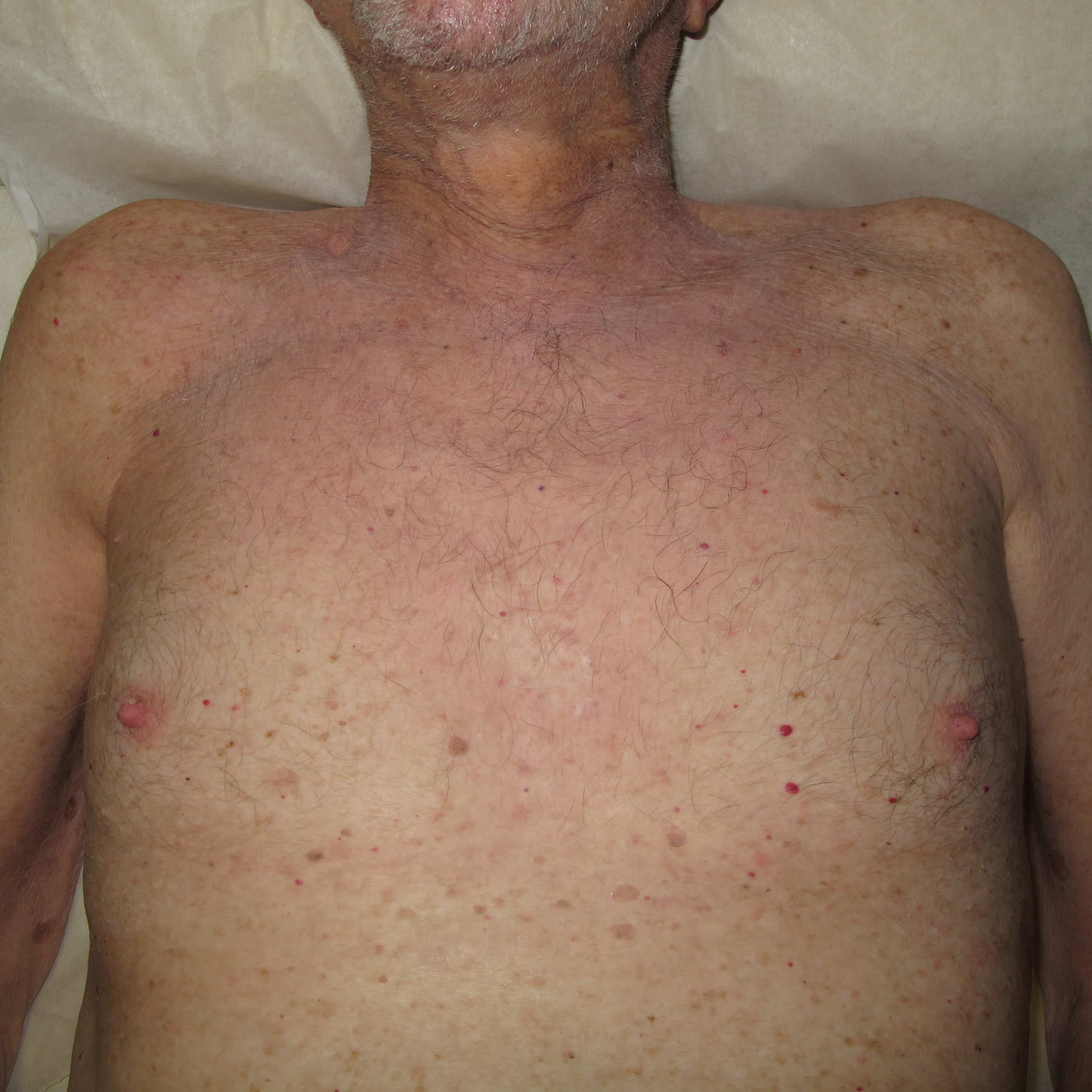 HIVES AND DERMATITIS   AFTER