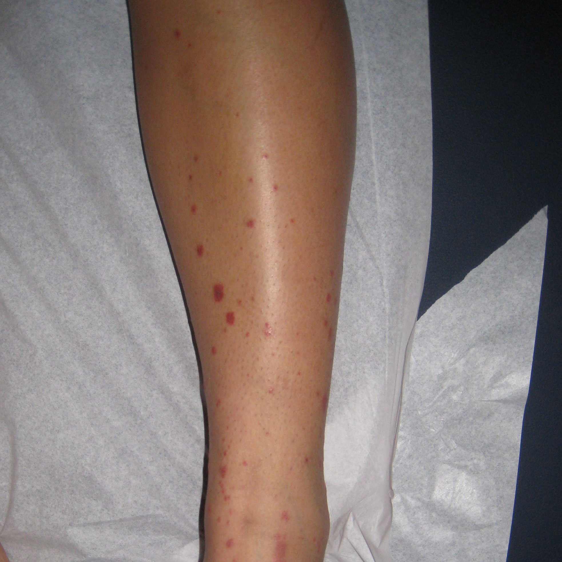 LEUKOCYTOCLASTIC VASCULITIS | BEFORE