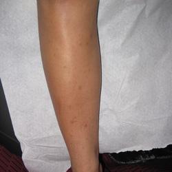 LEUKOCYTOCLASTIC VASCULITIS | AFTER
