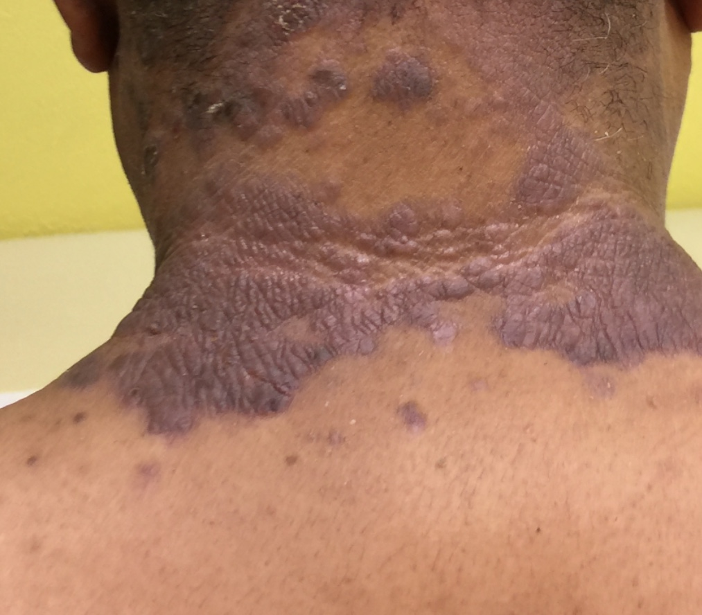 PSORIASIS | BEFORE