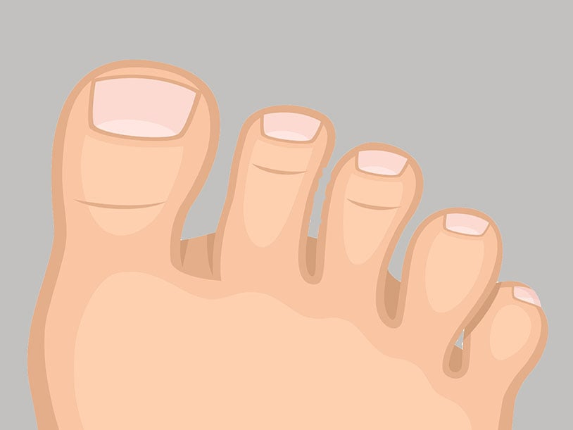 toenail problems