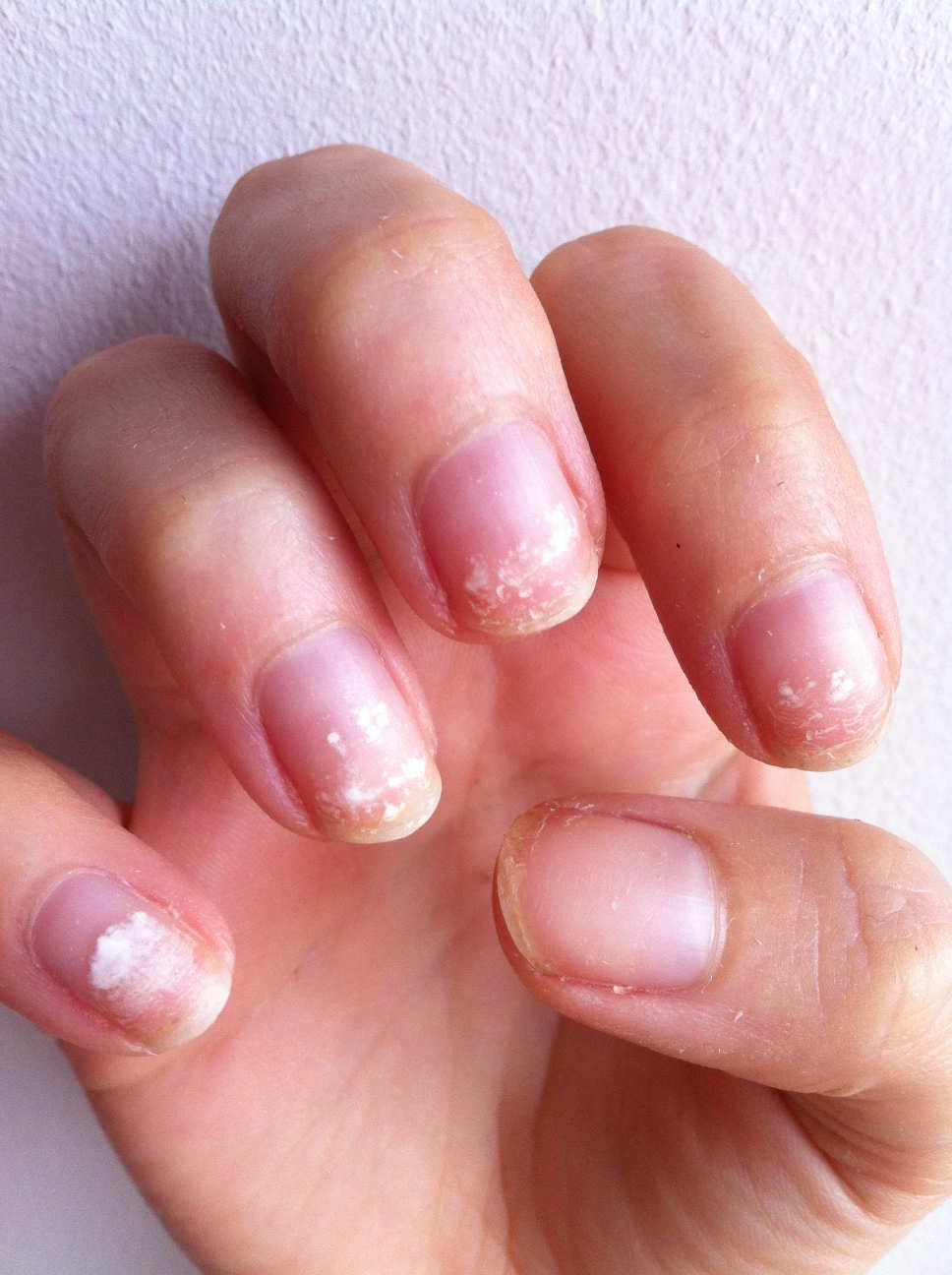 Damaged nails after removing acrylics too roughly.