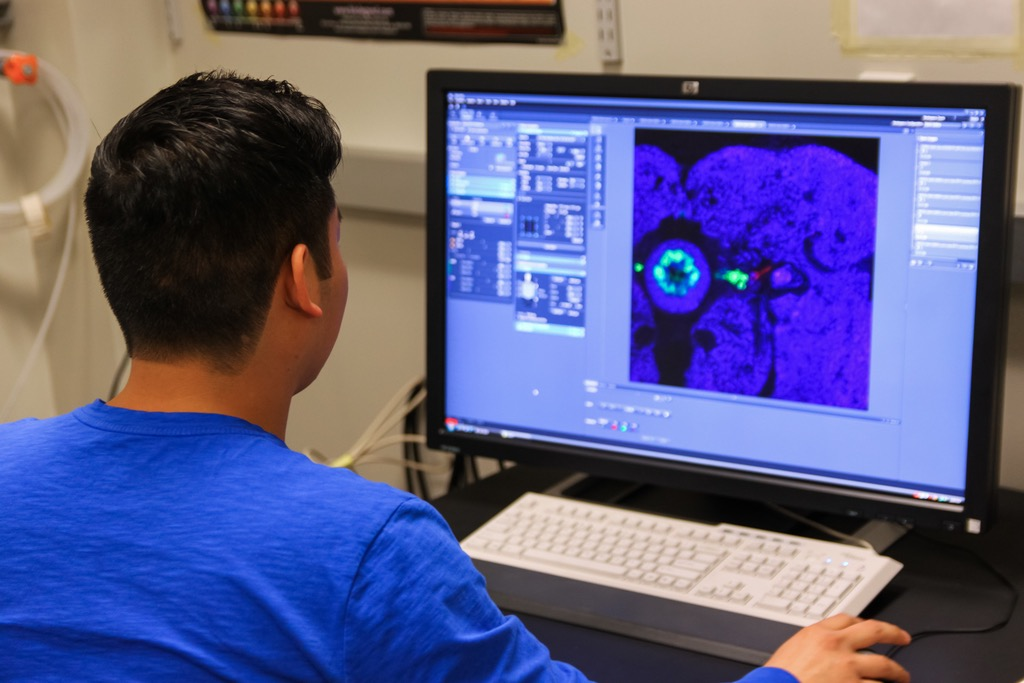 Using the computer, the user instructs the confocal microscope what optical sections to take of the brain tissue. The user can watch on the computer as slices of the tissue are sequentially scanned by the lasers. The brain shown here appears in three different colors, each representing fluorescent molecules labeling different structures. Image credit: Jeff Maloy
