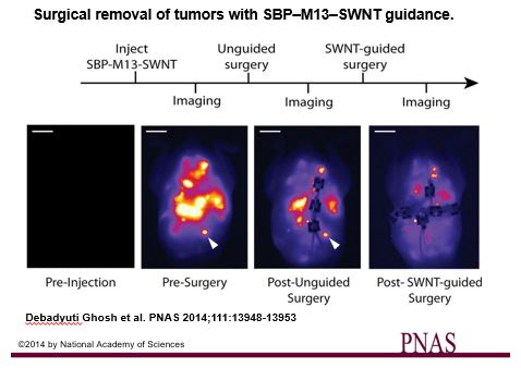 Figure 2: Using the probe to image during surgery, the researchers found more small and deeply embedded tumors. The white arrow points to a tumor that was only found and removed after imaging using the probe.