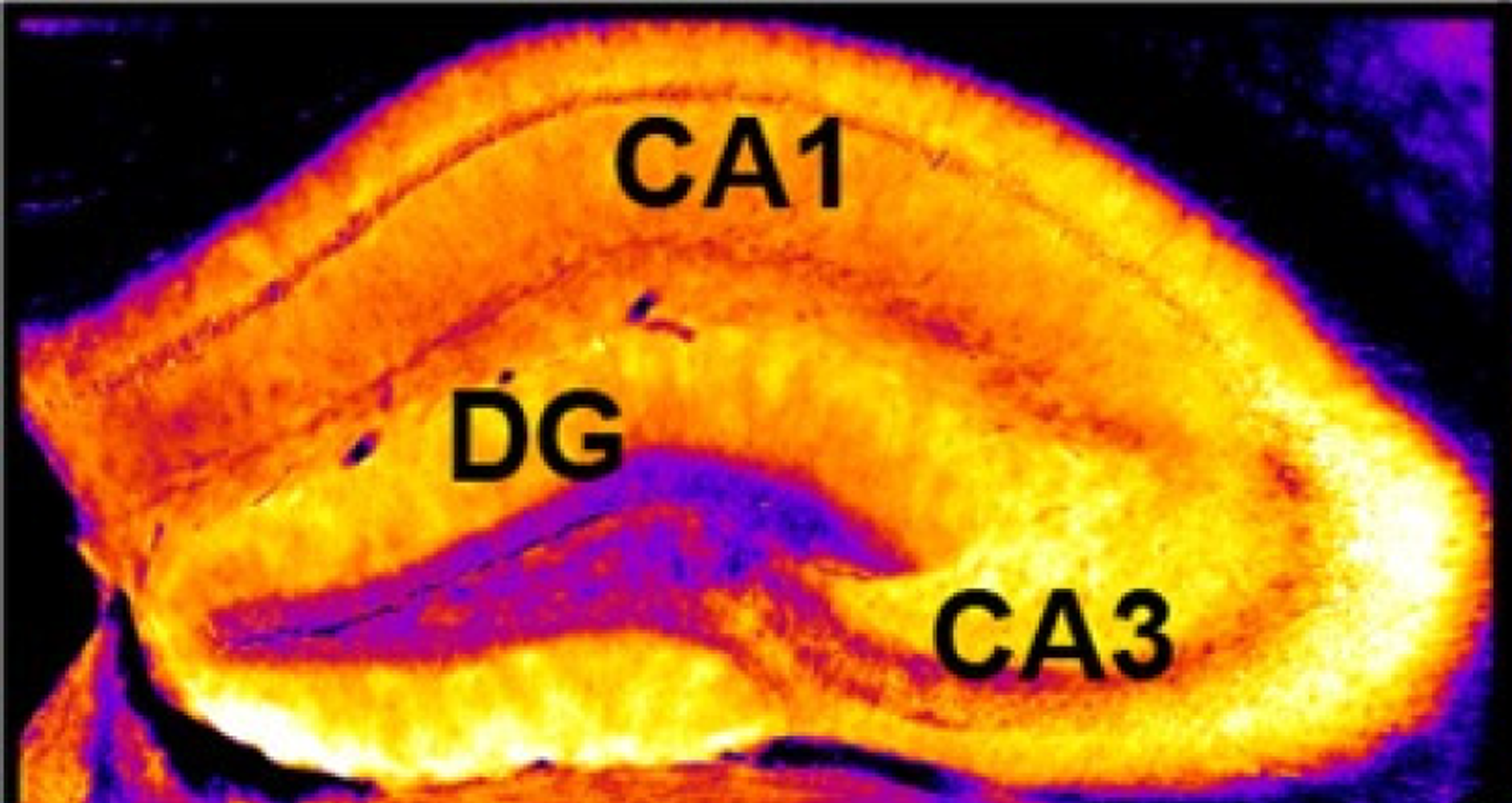 Cross section showing three domains of mouse hippocampus. Image credit: Panel from Figure 1B, 2016, Engin et al. Licensed  CC BY 4.0 .
