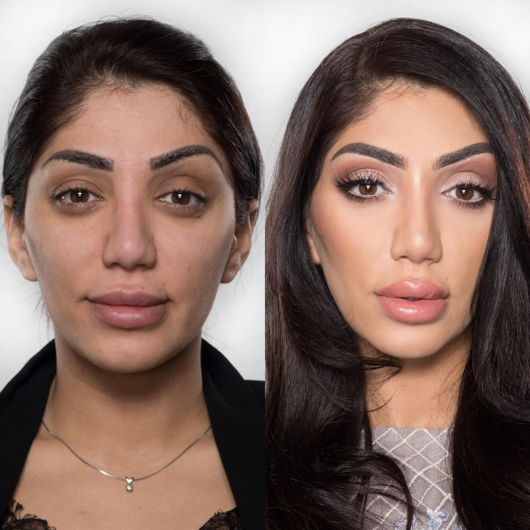 Begge bildene er uredigerte