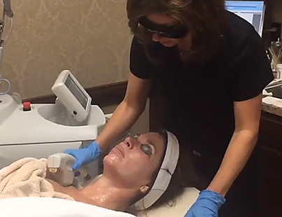 Broad Band Laser therapy gets rid of sun spots, uneven skin tone and fine lines.
