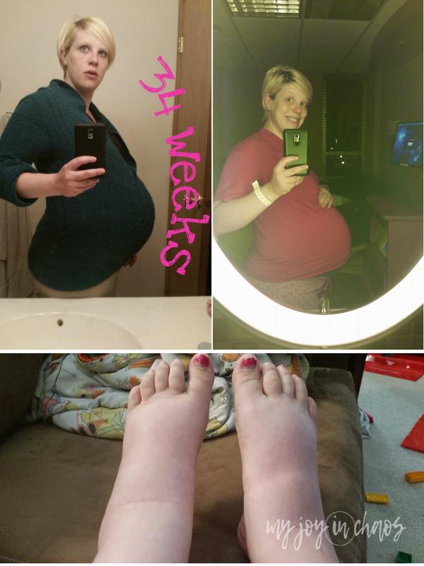 pre-eclampsia twin pregnancy