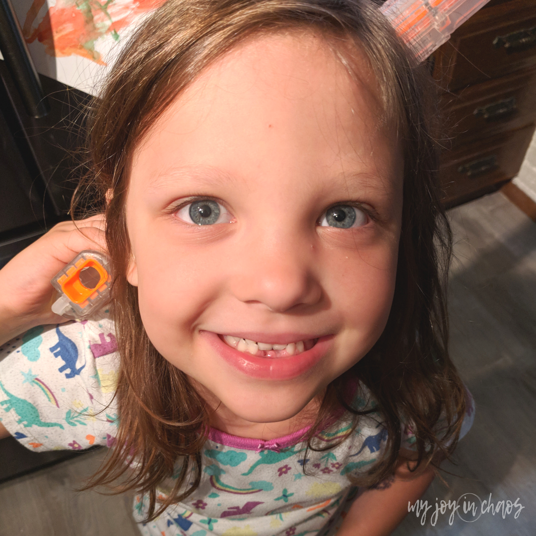 missing tooth, second lost tooth