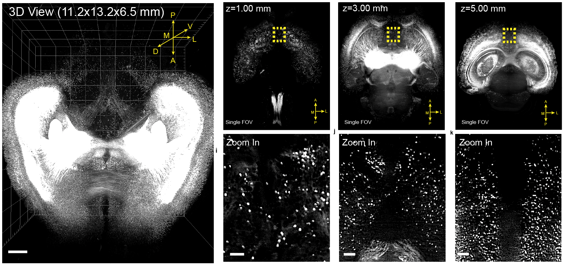 Left: three-dimensional rendering of a CLARITY-processed whole mouse brain (ArcTRAP), White: tdTomato signal. Scale bar, 500 µm. Right: Top: single FOV images at indicated imaging depths.  Bottom: zoomed in images from the yellow-boxed regions in the top row, showing cellular resolution. Scale bar, 100 µm.