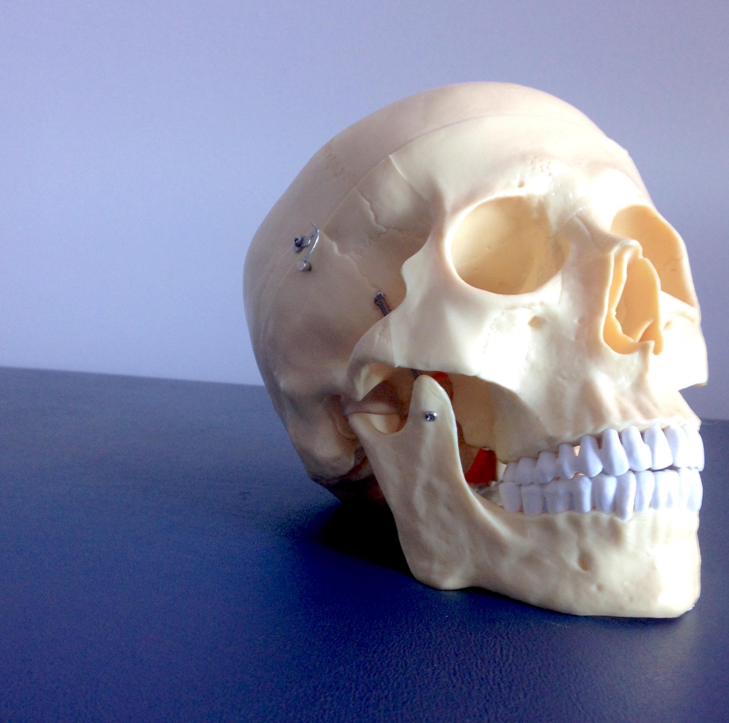 Skull_HP.jpg
