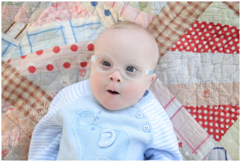 Cute baby with glasses and Down syndrome
