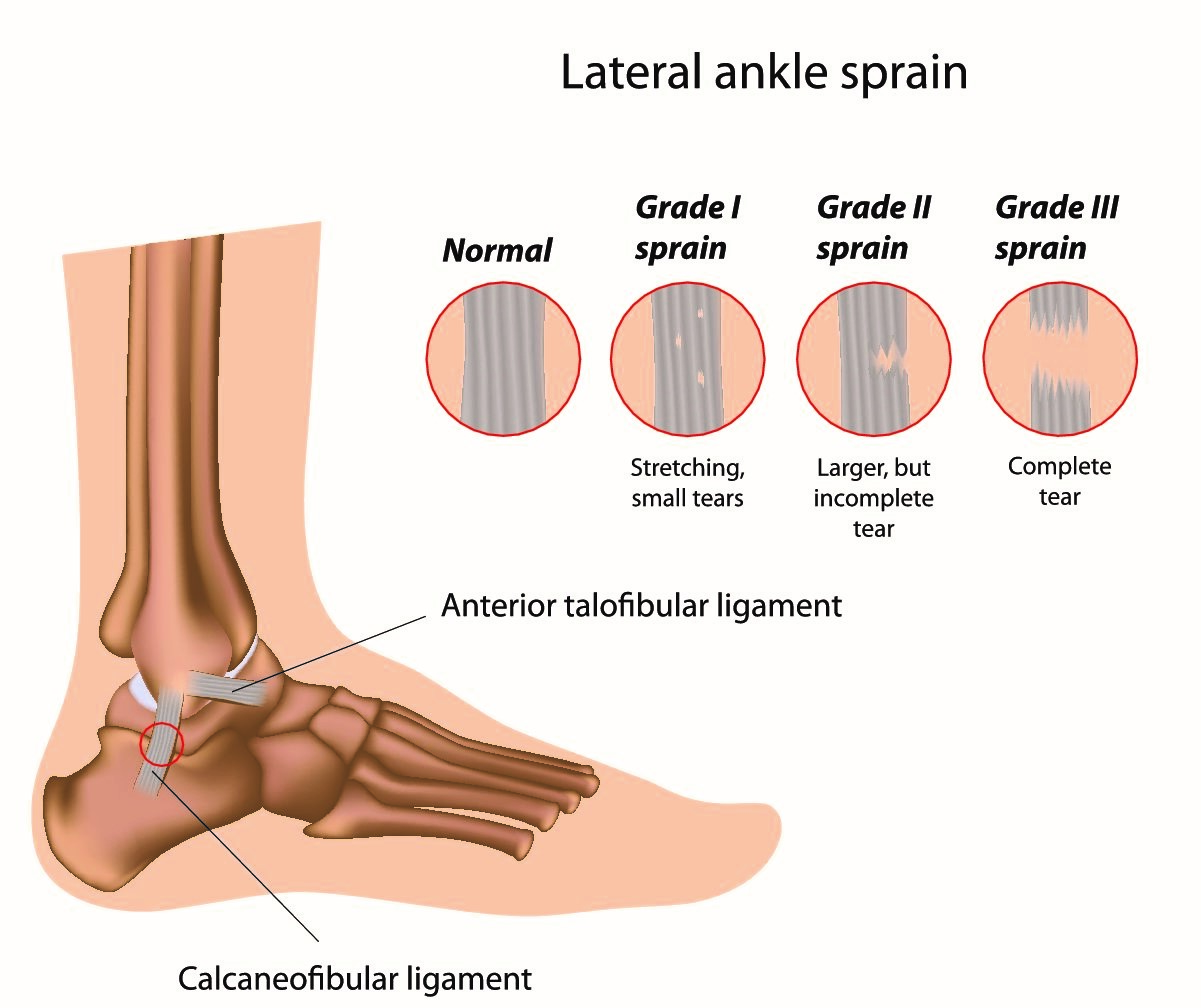 ankle 1.png