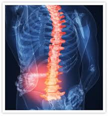 Damage to nervous tissue of spinal cord