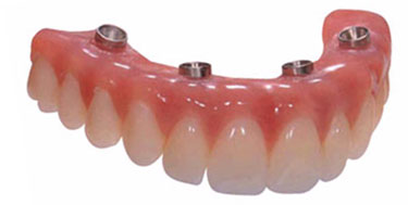 Fixed Full Arch Restoration; this device attached permanently by the dentist, and is removed for cleaning twice per year at the dental office.