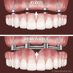 Removable implant supported dentures are an excellent, affordable option for anyone who is currently without teeth, or is unhappy with their teeth and want to start over with a brand new smile.