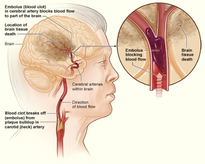 Picture of ischemic stroke. Source: National Heart, Lung and Blood Institute, National Institutes of Health