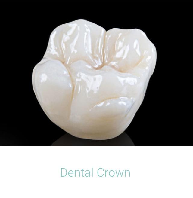 Dental Crown.jpg