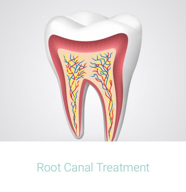 Dental Root Canal.jpg