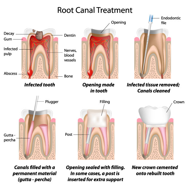 """Above picture shows some stages of a root canal treatment. When pulp tissue is infected, it will be removed and canals will be cleaned with filing the canal walls, widening then, shaping them and then will be filled and sealed with """"Gutta Percha"""" and sealer. If we don't fill the canals and leave them empty, even if they are cleaned, they will get infected again later. Any empty space in body with no blood supply is a good place for bacteria to hide, reproduce and cause infection."""