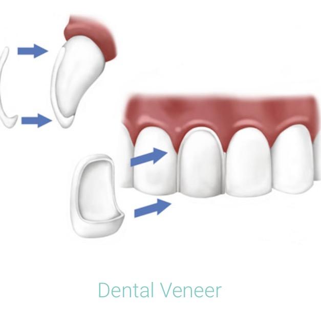 Dental Veneer.jpg