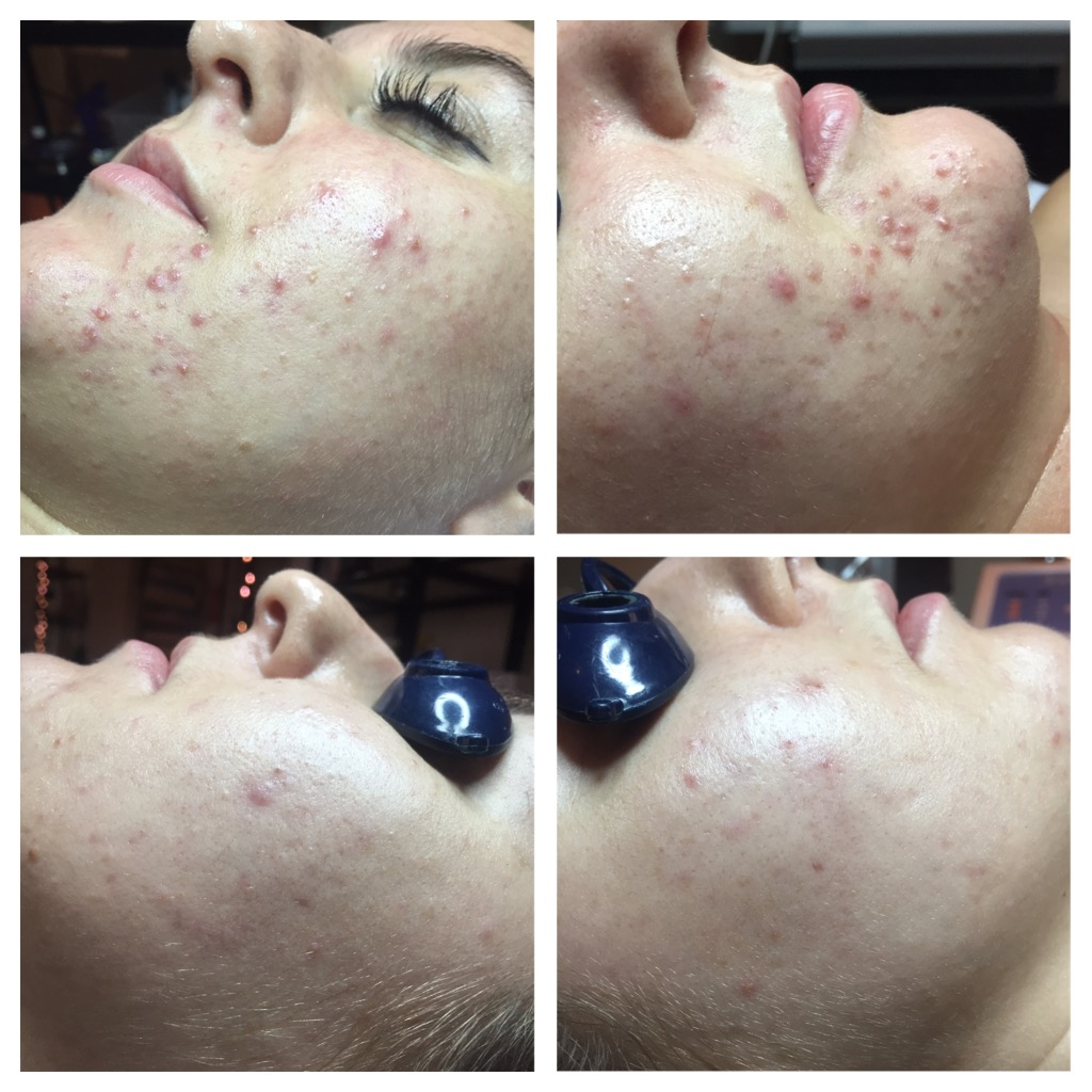 chemical peels for clearing acne