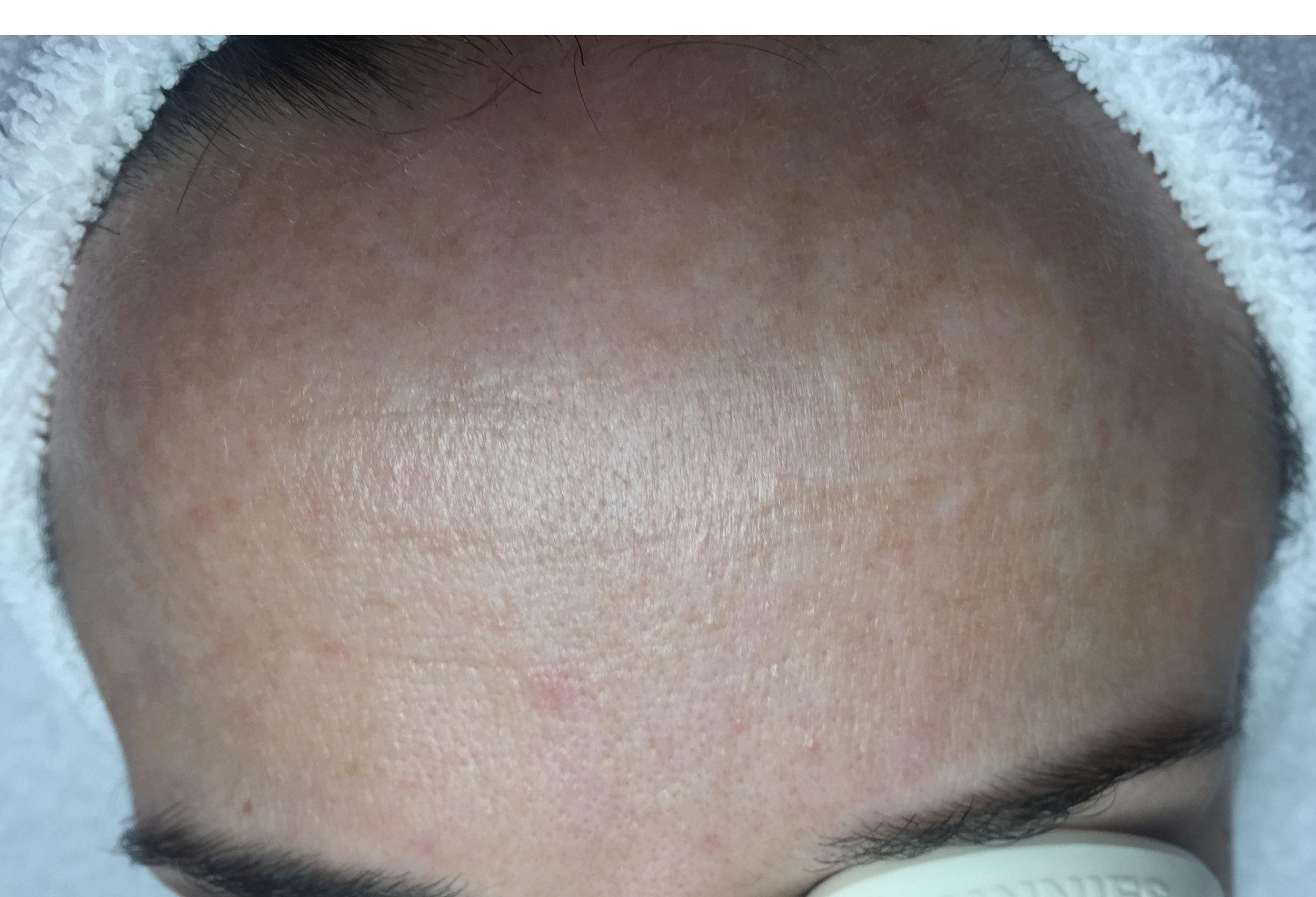treatments for pigmentation